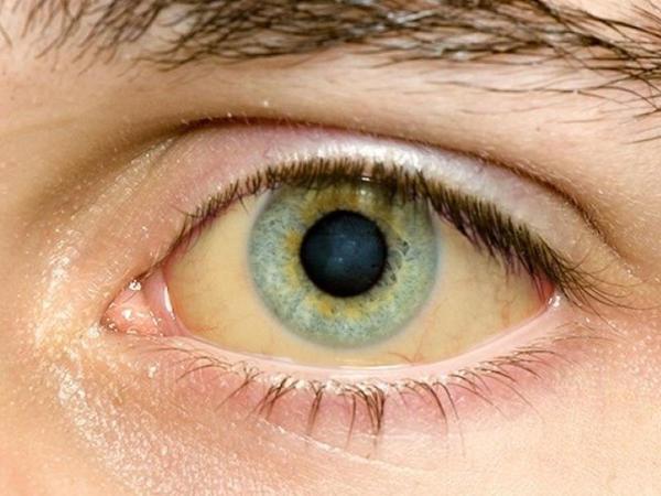 """Gözlərinə bax, xəstəliyini tap - <span class=""""color_red"""">Təhlükəli dəyişikliklər</span>"""