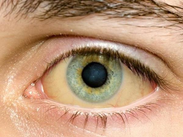"""Gözlərinə bax, xəstəliyini tap – <span class=""""color_red"""">Təhlükəli dəyişikliklər</span>"""
