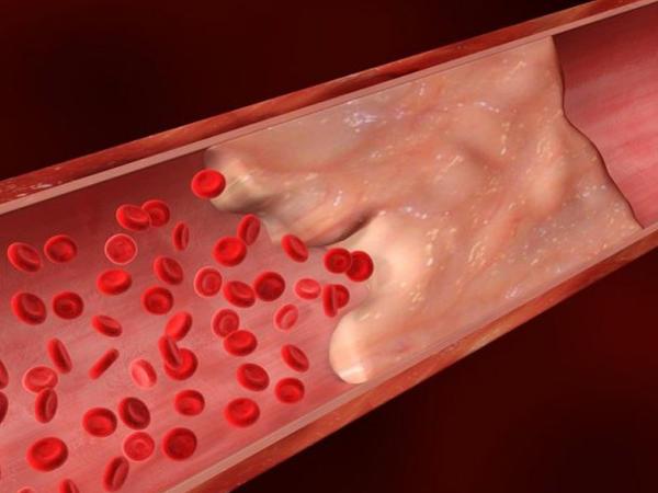 """Damar tıxanmasını da antibiotiklə müalicə edəcəklər – <span class=""""color_red""""> ALİMLƏR</span>"""