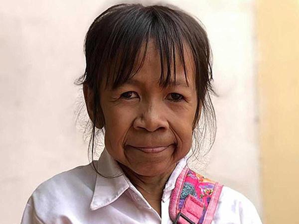 Xəstəlik 10 yaşlı qızı qoca qarıya çevirdi - FOTO
