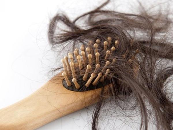 Saçlarımız niyə tökülür? - 11 SƏBƏB