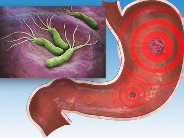 """Mədəsində helikobakteriyası bu qidaları yesin – <span class=""""color_red""""> Yanma və köpə qarşı</span>"""