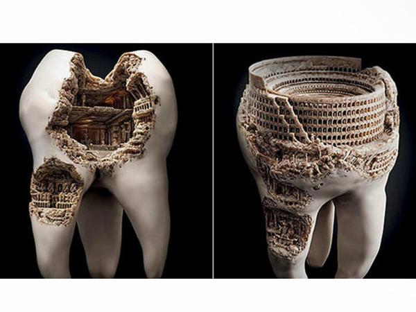 Fransız diş həkimindən diş ağrıları haqqında bilmədiyiniz QƏRİBƏ FAKTLAR