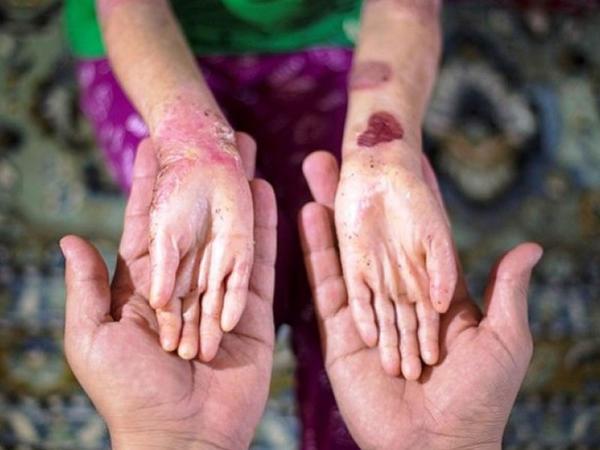Bulyoz xəstəliyinə tutulan 15 uşaq sarğı satışmazlığı ucbatından həyatını itirib