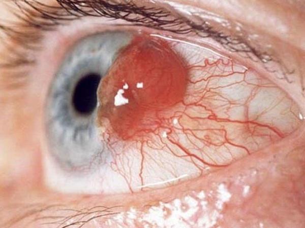 Hansı xəstəliklər korluğa səbəb olur? - Əlaməti gözlərdən başlamır