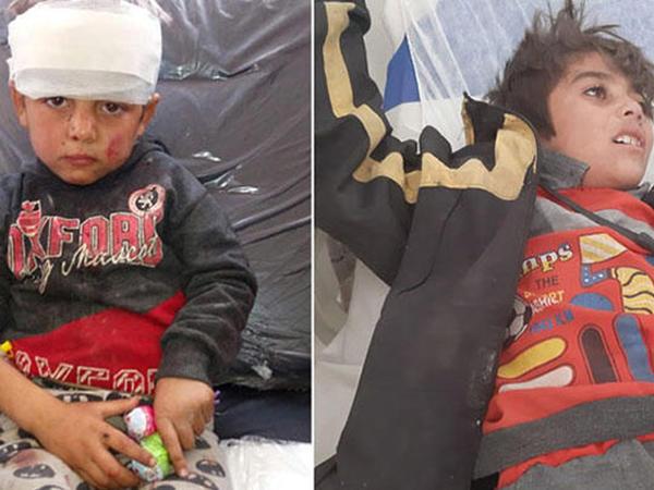 """PKK Suriyada məktəbi bombaladı - <span class=""""color_red"""">Ölənlər və yaralananlar var</span>"""