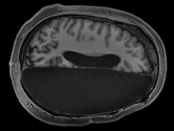 Beyninin yarısı götürülən insanlar normal həyatını davam etdirə bilir