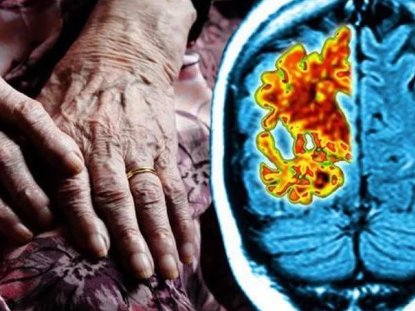 """Demensiyanın səbəbi beynin iltihabıdır – <span class=""""color_red""""> Yeni iddia</span>"""
