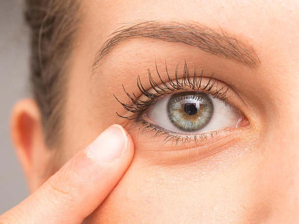 İki min yaşı olan göz xəstəliyi