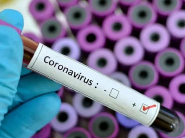 """Korona virusu Avropada da aşkarlandı <span class=""""color_red"""">- Yoluxanlar var</span>"""