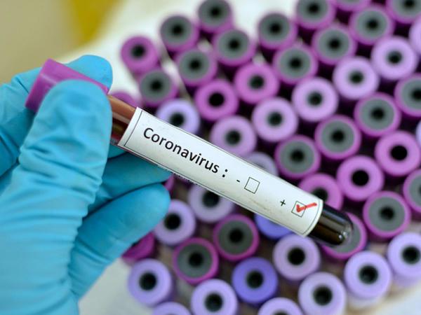 """Ölkəmizdə koronavirus təhlükəsi varmı? - <span class=""""color_red"""">Baytarlıq müfəttişi görülmüş işlərdən danışdı</span>"""