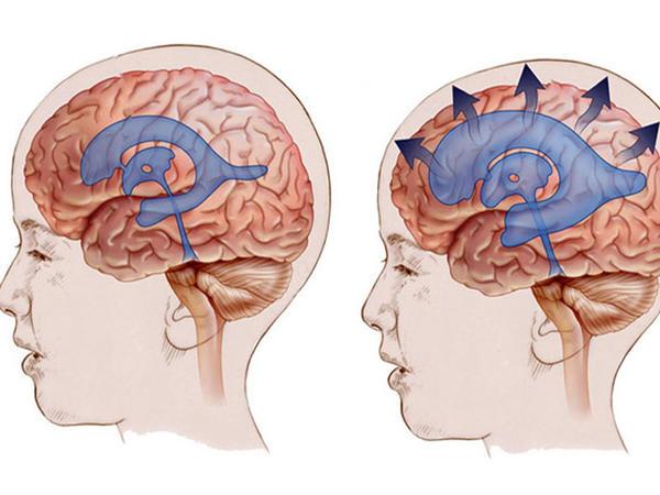 HİDROSEFALİYA - beyində mayenin yığılması