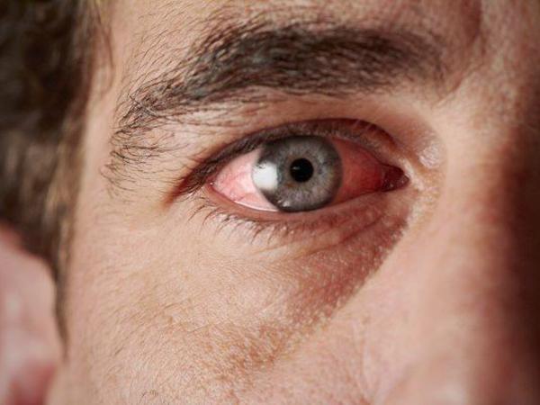Göz zədələnməsinə səbəb olan allergik xəstəliklərin SƏBƏBİ açıqlandı