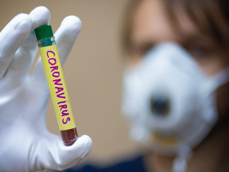 Koronavirusun hüceyrələrə necə təsir etdiyi müəyyən edildi