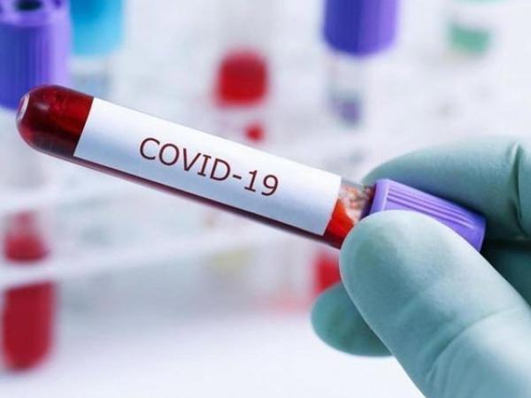Ermənistanda koronavirusa yoluxma sayı artır