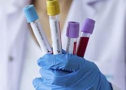 Ermənistanda koronavirusa yoluxanların sayı sürətlə artır