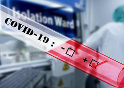 Koronavirusu yaradan 5G texnologiyasıdır?