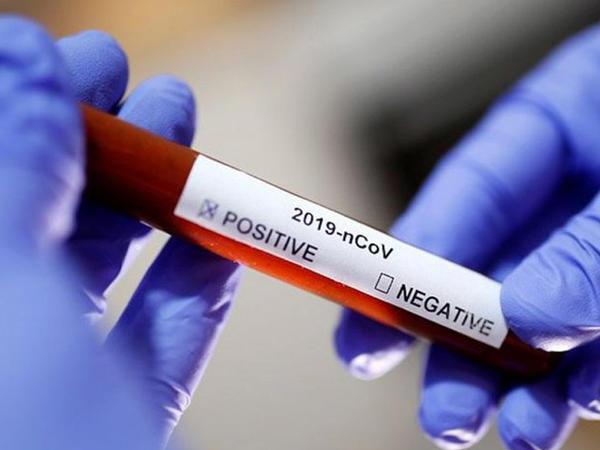 Dünyada koronavirusa yoluxanların sayı 6,5 milyon nəfəri ötüb