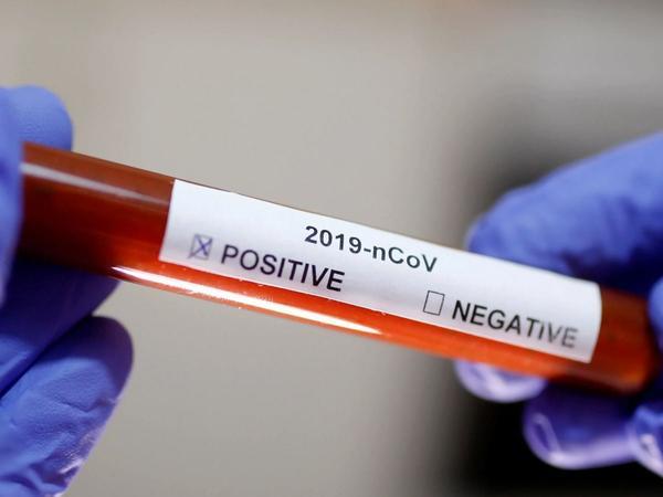 İngiltərə Premyer Liqasında daha 4 nəfər koronavirusa yoluxub