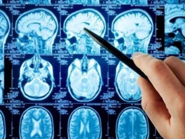 Ölümcül beyin şişini müalicə edəcək dərman hazırlandı