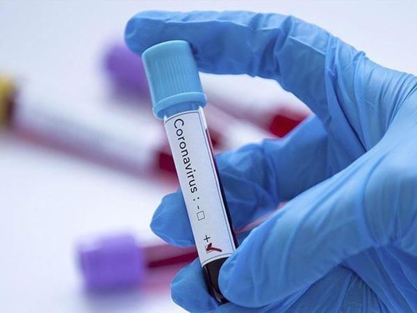 Qırğızıstanda koronavirusa yoluxanların sayı 1 871 nəfərə çatıb