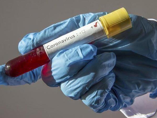 Dünyada koronavirusdan 600-dən çox tibb bacısı ölüb