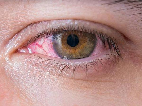 """Koronavirus gözə necə təsir edir? – <span class=""""color_red"""">Həkim detalları sadaladı</span>"""