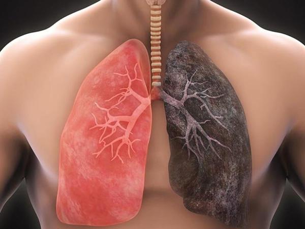 Ağciyərləri toksinlərdən təmizləyən super qidalar - SİYAHI