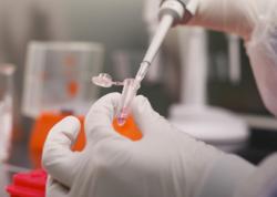 Dünyada 10,3 milyondan çox insan koronavirusa yoluxub