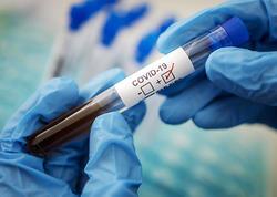 Daha 542 nəfərdə koronavirus aşkarlandı, 9 pasiyent öldü, 465 nəfər sağaldı