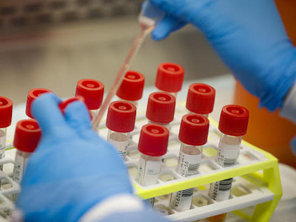 Rusiyada 35 deputat koronavirusa yoluxub