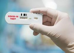 Nabil Seydiov: Testin mənfi olması koronaviurusun 100 faiz olmadığını təsdiq etmir