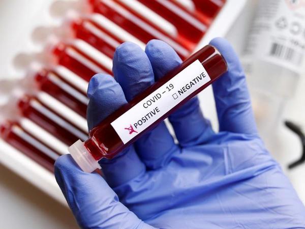 Azərbaycanda ümumilikdə 812 033 koronavirus testi aparılıb
