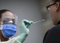 ABŞ-da 60 milyondan çox koronavirus testi aparılıb