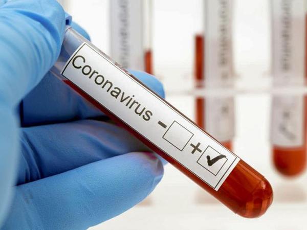 """ABŞ-da son sutkada koronavirusdan <span class=""""color_red"""">540 nəfər ölüb</span>"""
