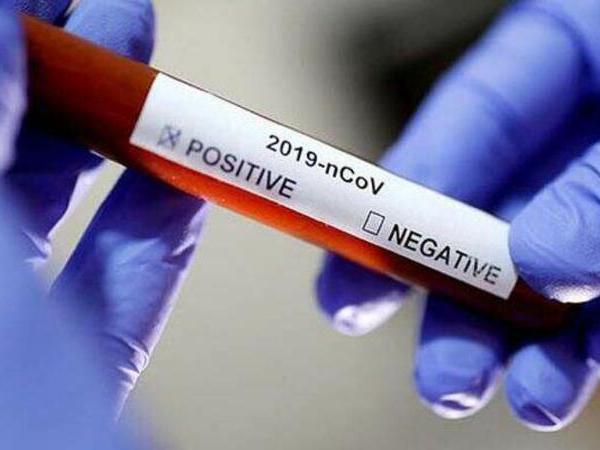 Koronavirusun müalicəsində yeni metoddan istifadə ediləcək