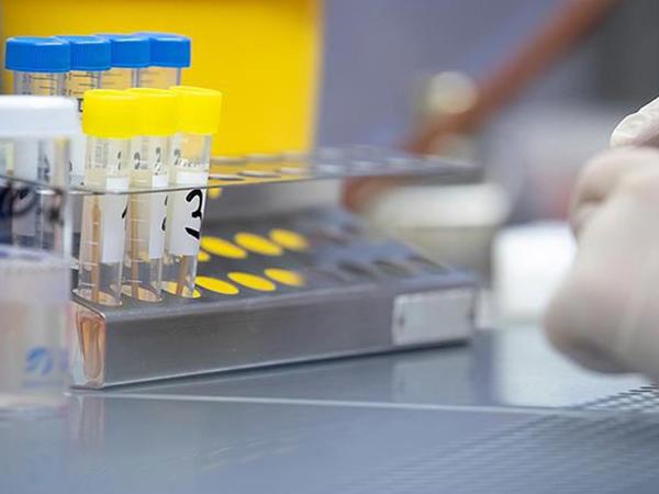 Dünyada koronavirusa yoluxanların sayı 253 mindən çox artıb