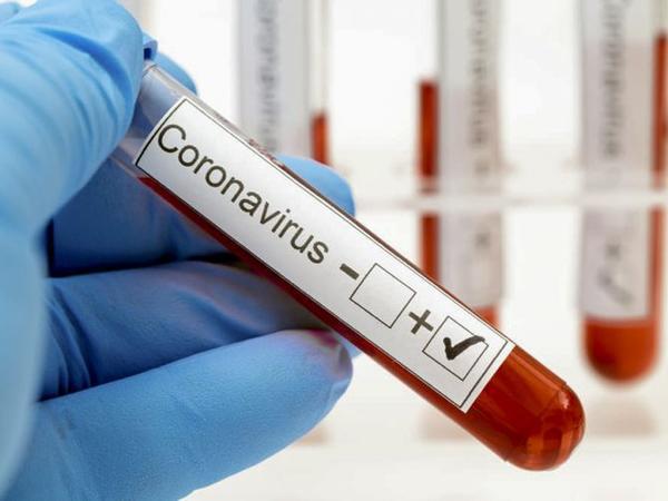 Azərbaycanda 91 nəfər koronavirusa yoluxdu, 211 nəfər sağaldı