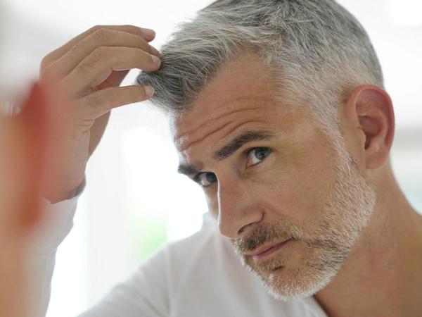 Saçları ağarmış kişilərdə ürək xəstəliklərinin daha çox baş verdiyini bilirdinizmi?