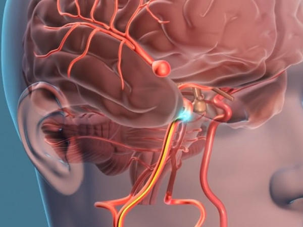 Şiddətli baş ağrısı, ikili görmə, göz arxasında ağrı anevrizmanın əlaməti ola bilər
