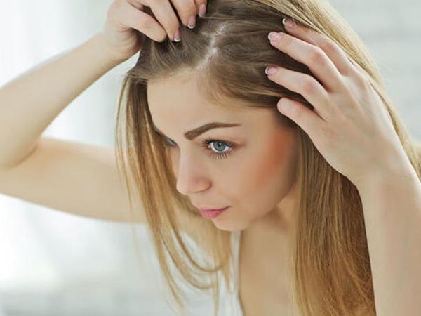 Saçlarda yağlanmanın səbəbləri: Təbii yollarla aradan qaldırmaq olarmı?