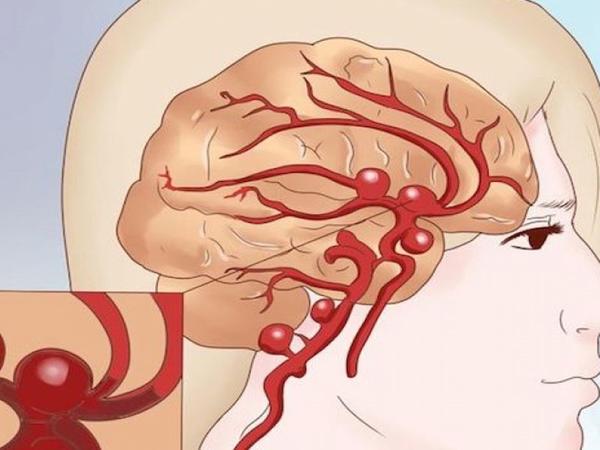 Siqaret çəkmək beyin qan dövranını pozur - Alimlər