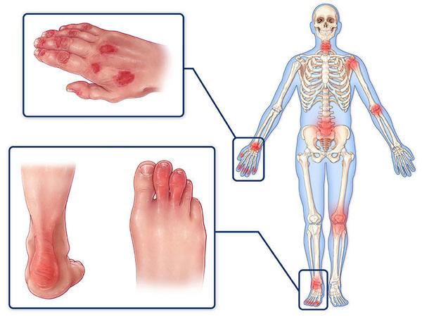 Artritə səbəb olan infeksion xəstəliklər