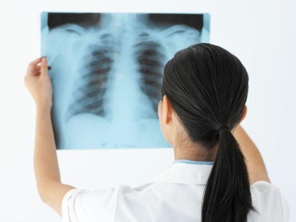 Ağciyəri gücləndirən qidalar