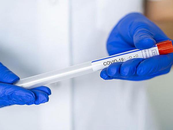 Böyük Britaniyada hər gün təqribən 100 min insan koronavirus xəstəliyinə tutulur