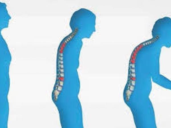 Osteoporoz: 50 yaşdan sonra hər üç qadından, hər beş kişidən biri bu xəstəlikdən əziyyət çəkir