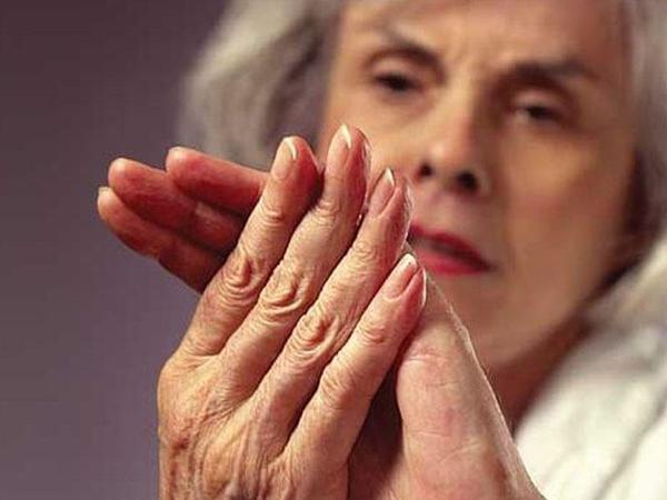 Artritin müxtəlif növləri və əlamətləri