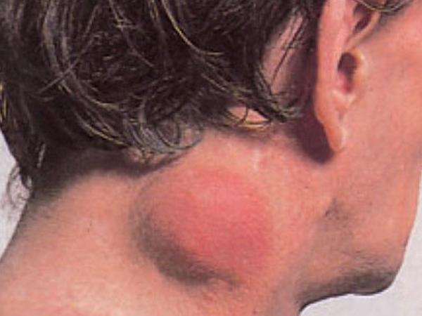 Limfadenopatiya