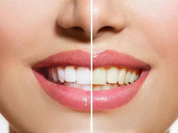 Ev şəraitində özünüz diş pstası düzəldin və dişlərinizi ağardın