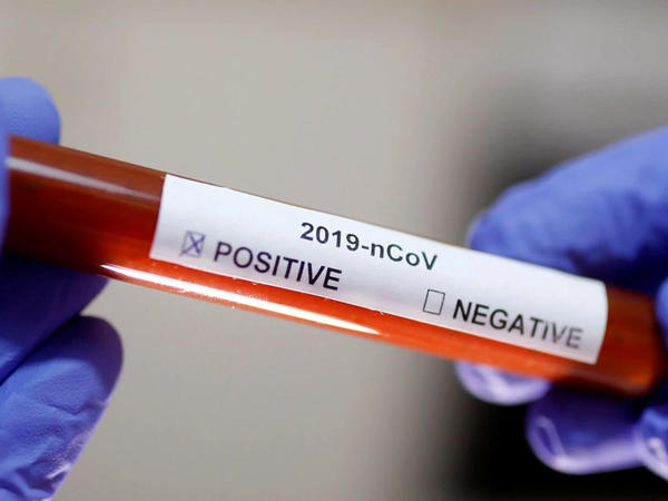 İngiltərədə daha 8 nəfər koronavirusa yoluxub